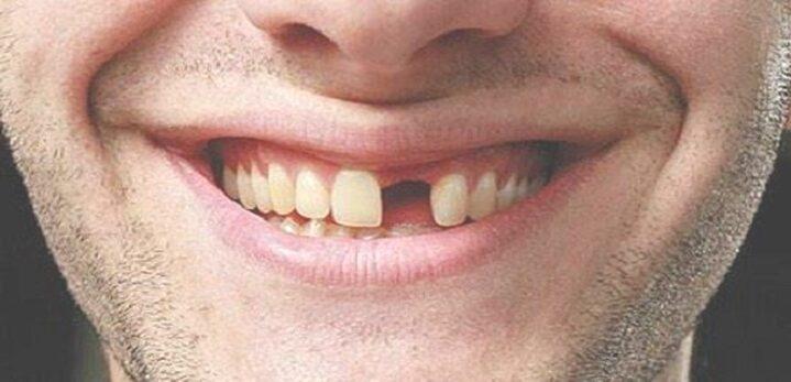 10 arti mimpi gigi hilang